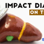 Impact of Diabetes on the Liver
